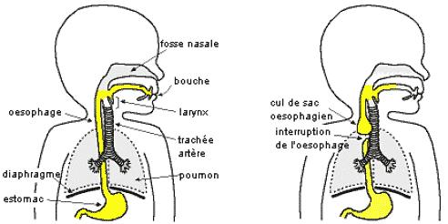 Oesophage normal et atrésique