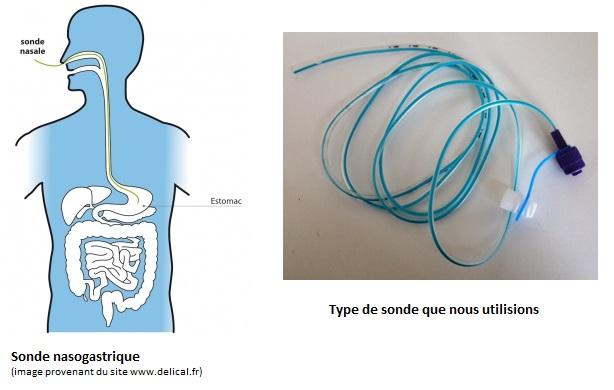 l'alimentation entérale - Sonde nasale