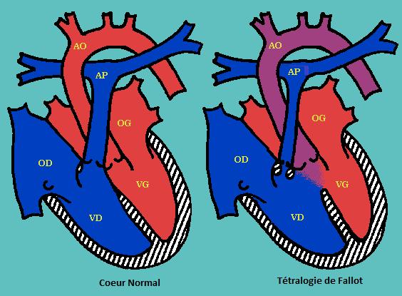les malformations cardiaques - Tétralogie de Fallot